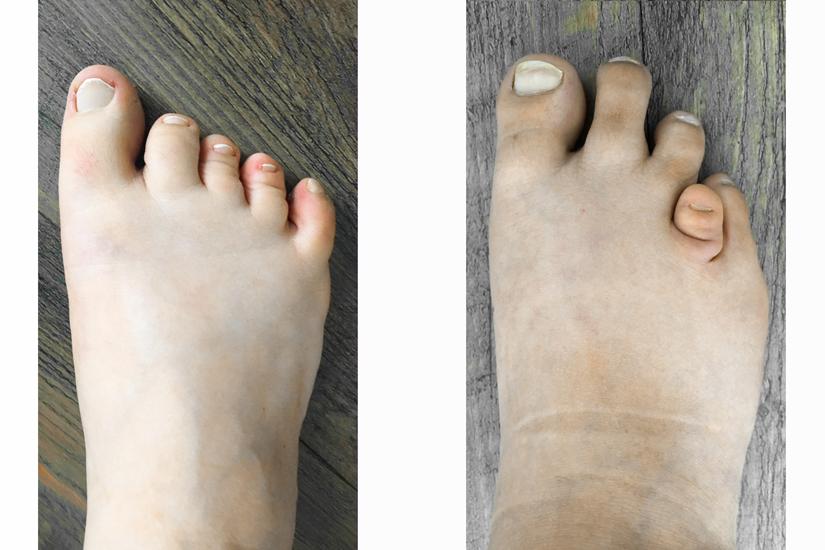 Kurze Zehen bei Brachdaktylie