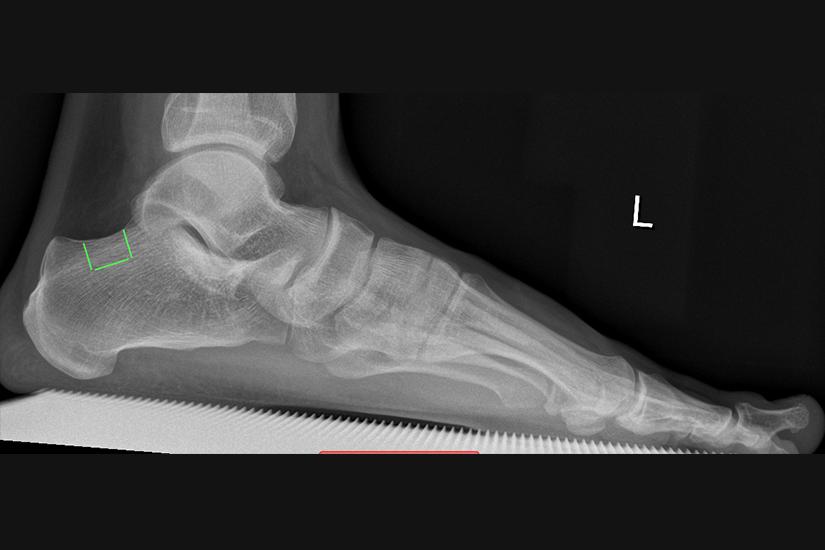 Röntgenbild Fuß vor Brachymetatarsie Behandlung
