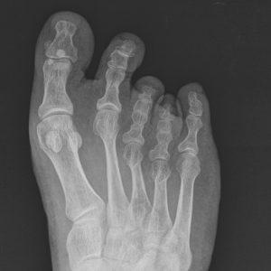 brachymetatarsie-4-erdogan-paarige-brachymetatarsie-roentgenbild