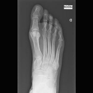 brachymetatarsie-5-edogan-roentgenbild-normaler-fuss