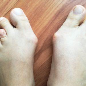 brachymetatarsie-7-erdogan--beidseitige-paarige-brachymetatarsie-hallux-valgus
