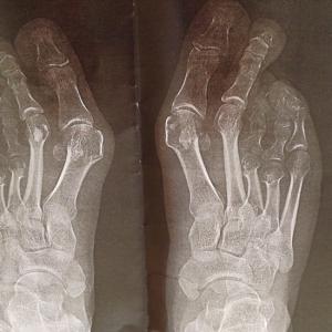 brachymetatarsie-8-erdogan-kurze-zehen-roentgenbild-beidseitige-brachymetatarsie